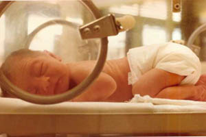 Уход за недоношенным ребенком